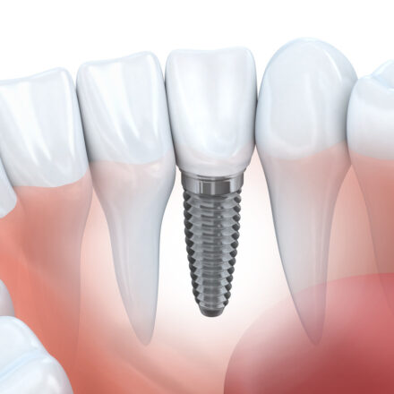 General Information on the Causes of Failure of Dental Implantation