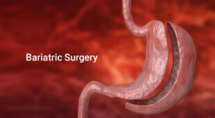 Comparison of Bariatric Surgeries