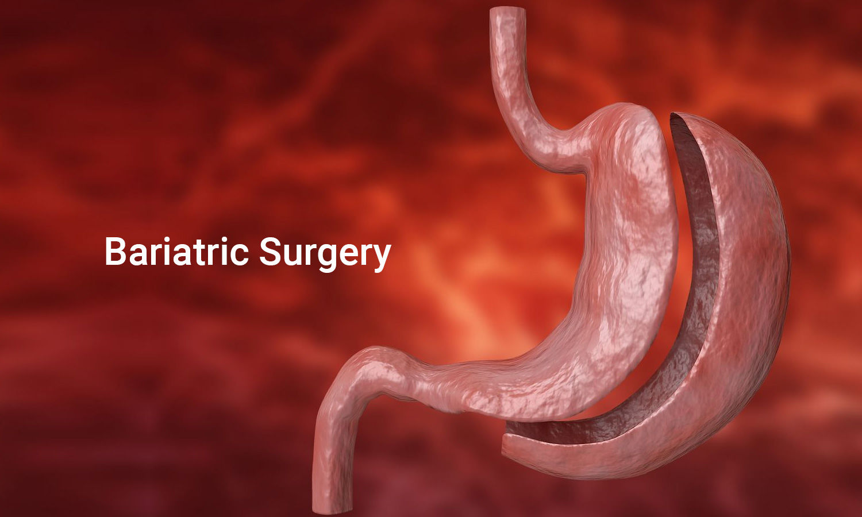Comparison of Bariatric Surgeries